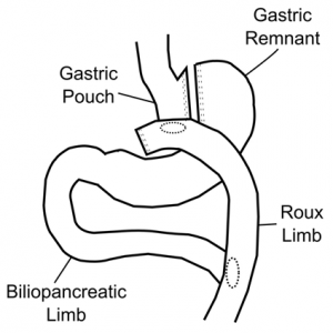 Roux-en-Y Gastric Bypass, or NY Gastric Bypass